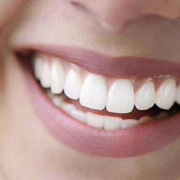 Promienny uśmiech i białe zęby – jak uzyskać najlepsze efekty?